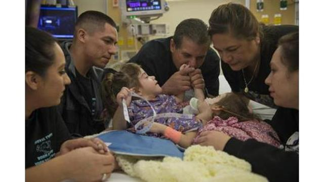 VIDEO: Sacramento area conjoined twins separated in successful surgery at Stanford Children's Hospital