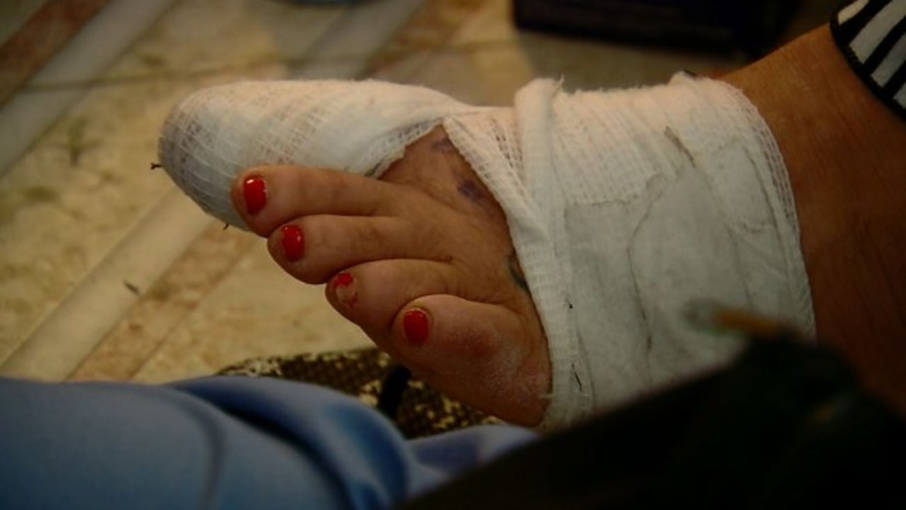 VIDEO: Woman blames nail salon for infection that led to week-long ...