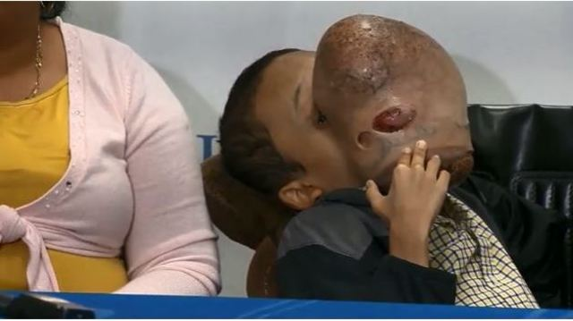 Doctors to remove basketball-sized tumor from teen's face